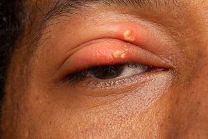 photo of ophthalmic shingles